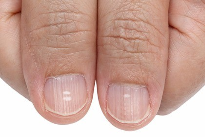 white-spots-and-vertical-ridges-on-the-fingernails